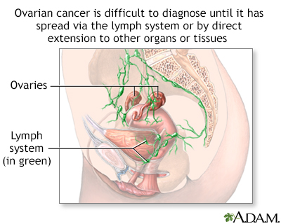 Ovarian cancer white blood cell count